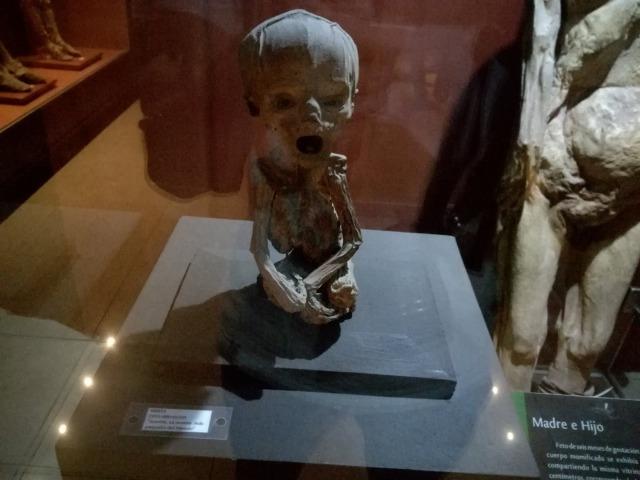 胎児のミイラ